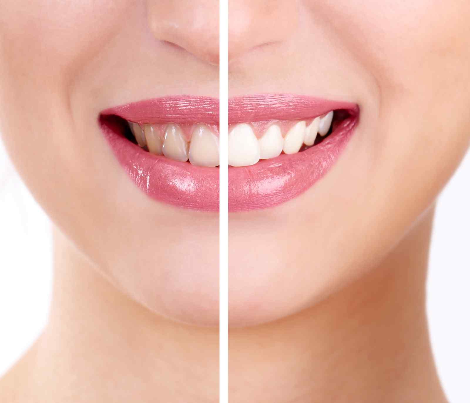 La pulizia della bocca cambia la sua faccia