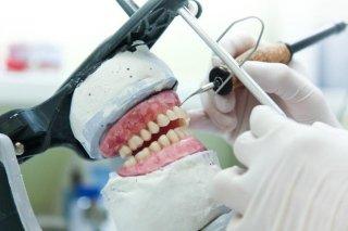 realizzazione protesi