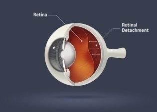 Eye condition in cataract