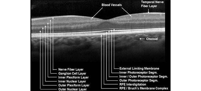 esame a fondo dell'occhio
