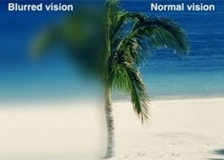 Cataract's effect on vision