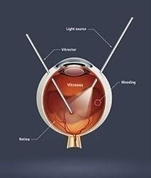 Vitreoretinal surgery