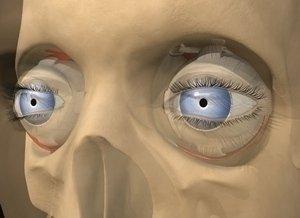 glaucoma oculare