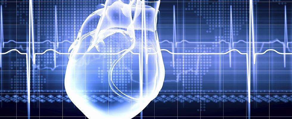 diagnostica cardio-vascolare