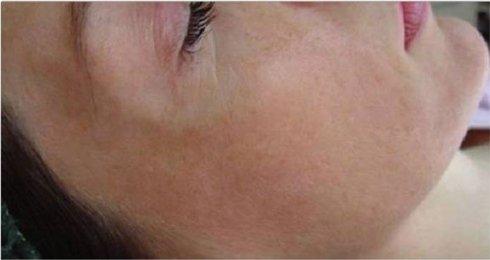 dermatologia Piacenza