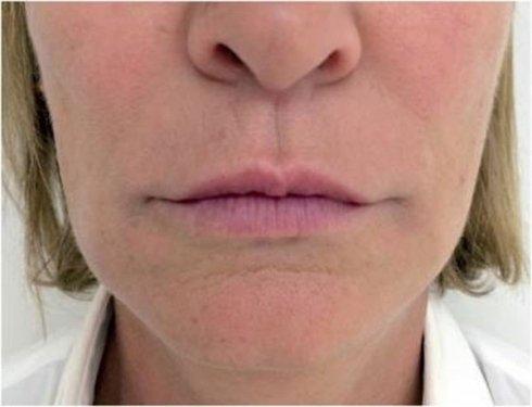 Fili dermici riassorbibili biostimolazione /trazione prima