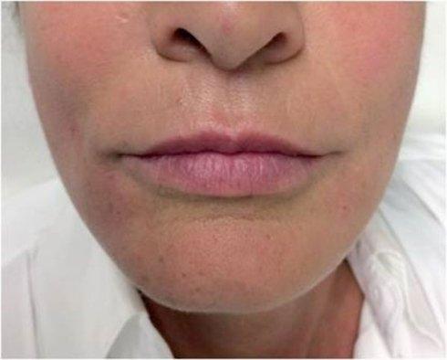 Fili dermici riassorbibili biostimolazione /trazione dopo