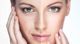 trattamenti macchie pelle