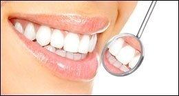 sbiancamento denti, apparecchi ortodontici