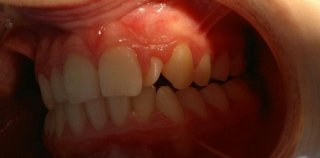 ortodonzia_prima