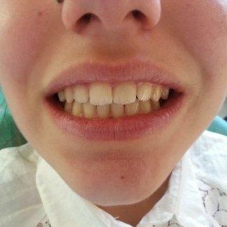 ortodonzia mobile dopo