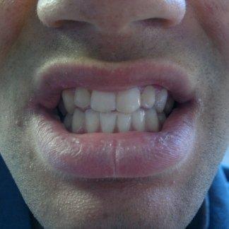 correzione_ortodontica_dopo