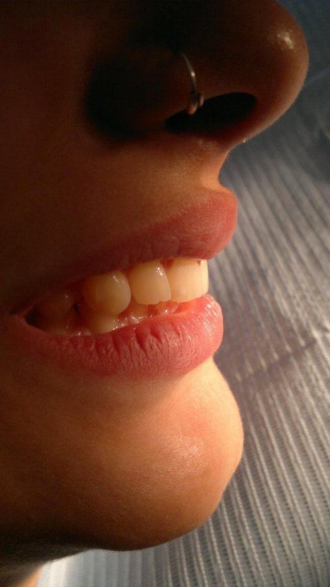 ortodonzia_invisibile_profilo_dopo