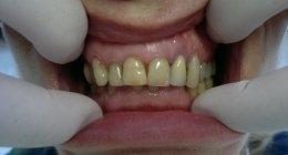 chirurgia orale, chirurgia parodontale, implantologia a carico immediato