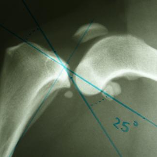 chirurgia ortopedica per frattura radio-ulnare cane