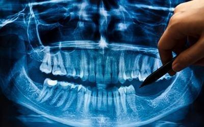 ricostruzione ossea-implantologia