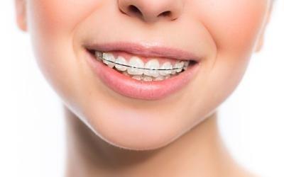 ortodonzia-tradizionale