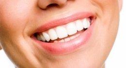 installazione protesi, impianti dentali, odontoiatria