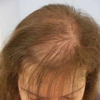 Alopecie secche della donna