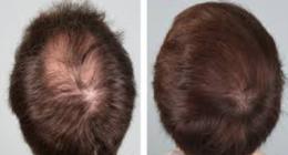 cura della caduta dei capelli
