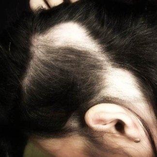 Alopecie croniche femminili