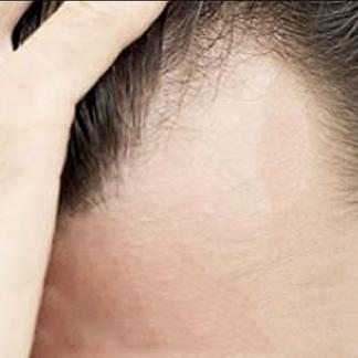 Alopecie traumatiche