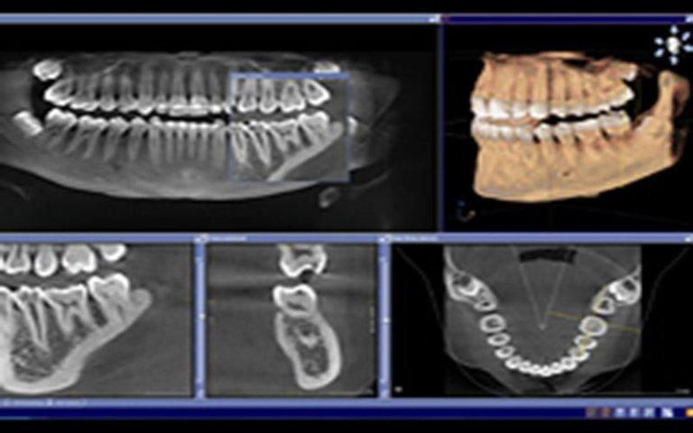 apparecchi radiografici odontoiatria
