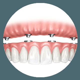 implantologia chirurgica
