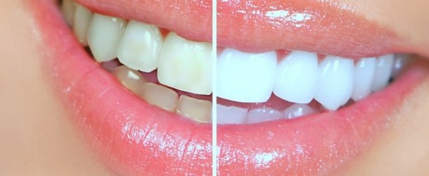 Teeth- Tooth Whitening Cosmetic Dentist Marina Del Ray
