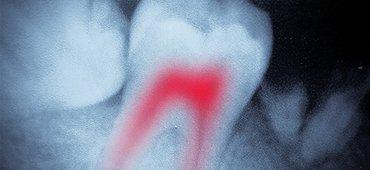 Endodontics Marina Del Ray