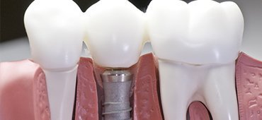 Dental Implants Marina Del Ray