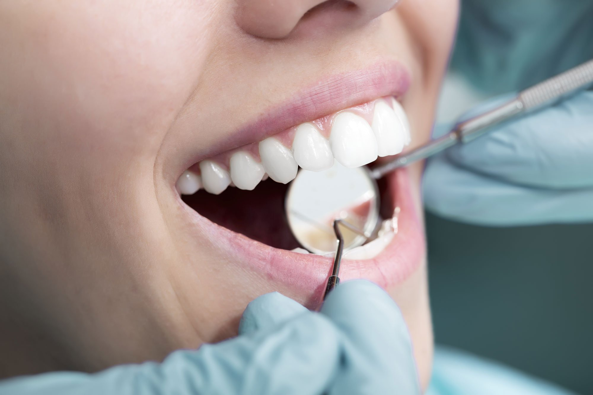 Teeth whitening procedure in Enterprise, AL