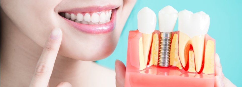 ragazza mostra un modello di impianto dentale
