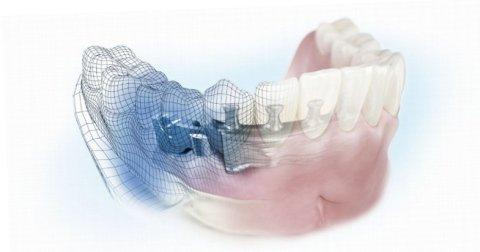 protesi dentale studio Mercurio Aulla Ms