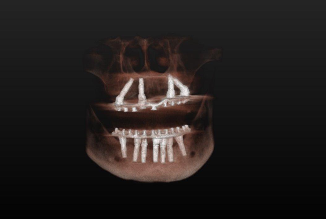 donna e bambina con denti sbiancati