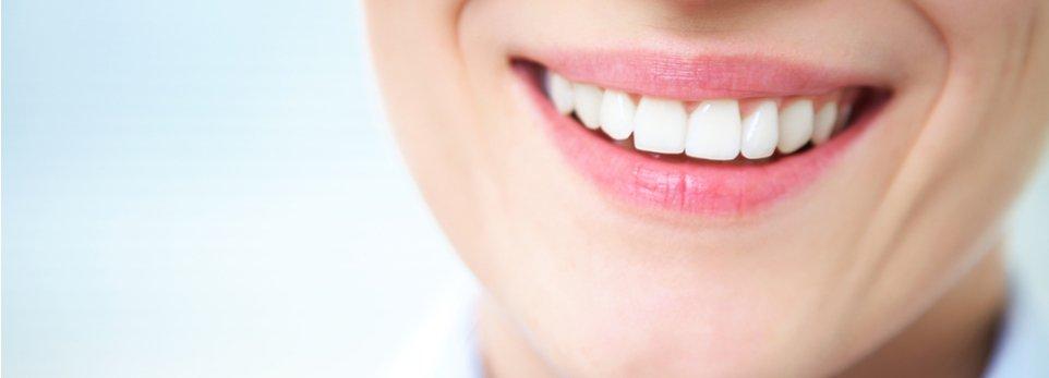 sorriso splendente