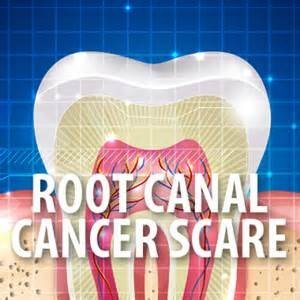 Straine-On-Success — Link Between Root Canals & Cancer?