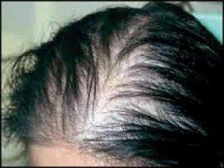 Cura diradamento capelli donna
