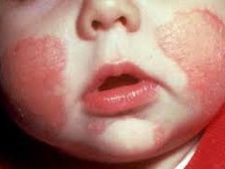 Dermatologo bambini