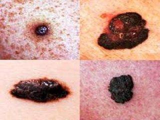 Prevenzione tumori cutanei