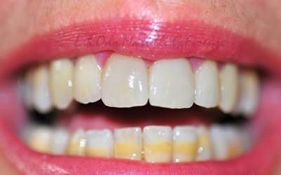 sistemazione denti