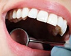 igiene professionale denti