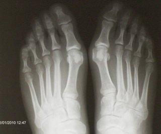 radiografie alluce valgo