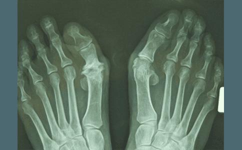 radiografie ortopediche