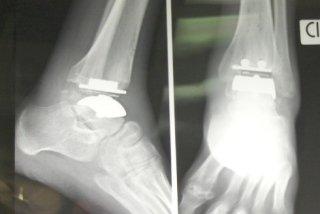 radiografia caviglia