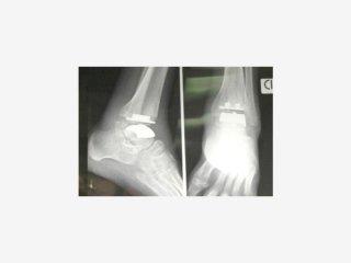 chirurgia caviglia