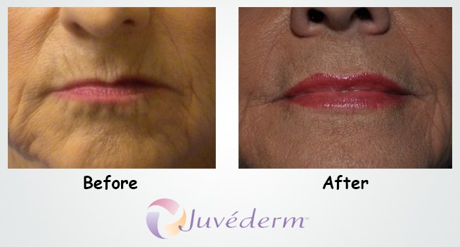 juvederm in Russellville, AR