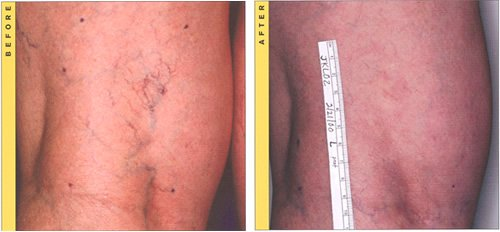 spider vein removal in Conway, AR