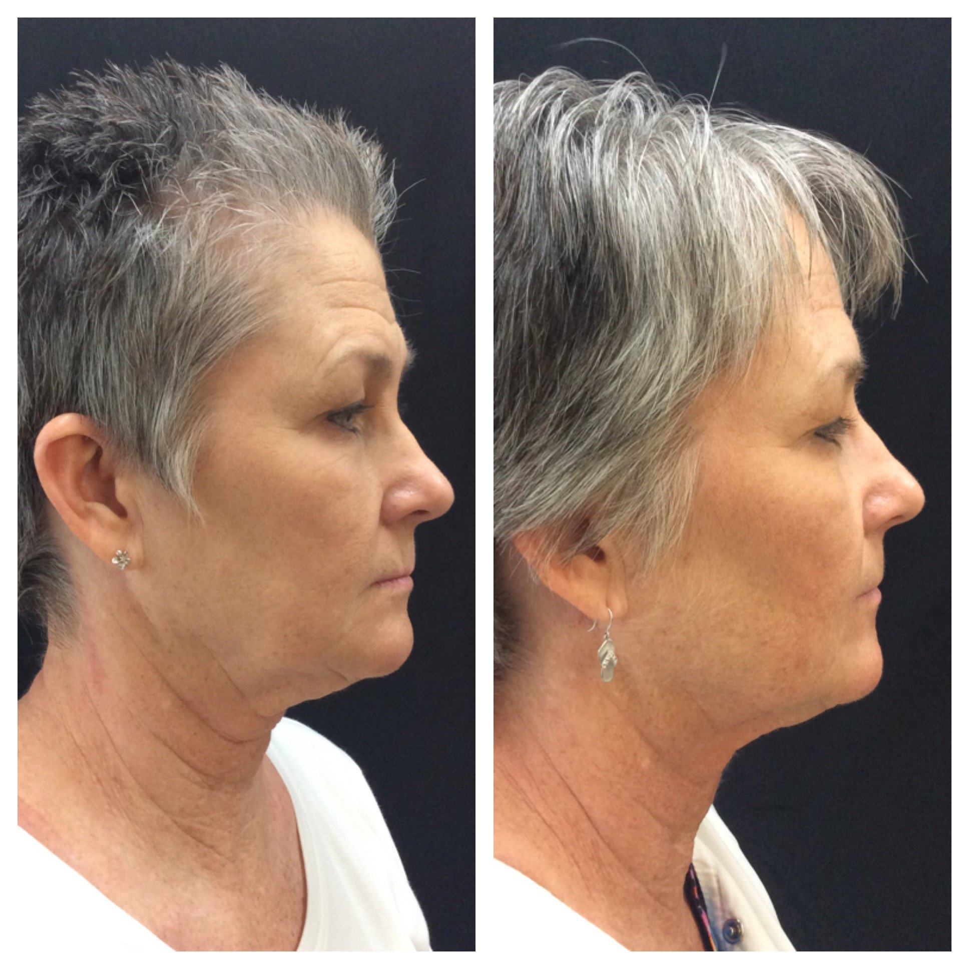 non-invasive face lift in Conway, AR