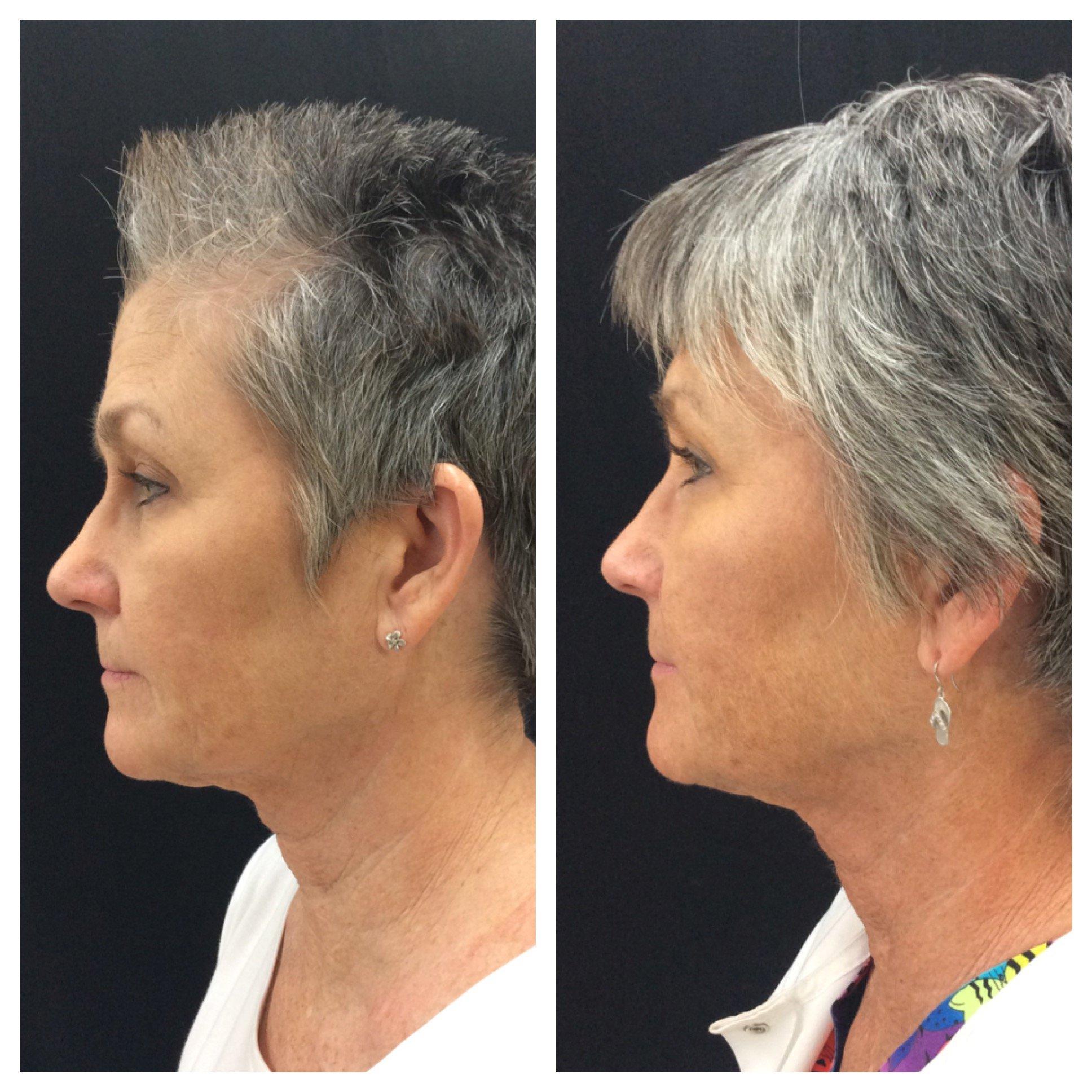 non-invasive face lift Conway, AR